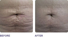Soprano ST Laser Skin Titghtening - Before and After Images